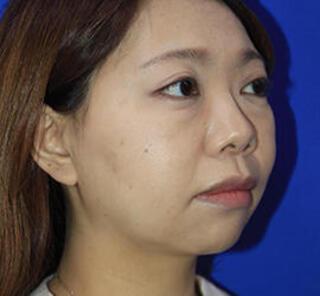 オザキクリニックLUXE新宿の3Dリポアイリフト・顔の脂肪吸引(頬・あご下+バッカルファット+メーラーファット)の症例写真(ビフォー)