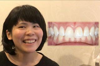 オーラルビューティークリニック白金のガミースマイル治療:歯冠長延長術(CLP)の症例写真(アフター)