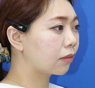オザキクリニックLUXE新宿の3Dリポアイリフト・顔の脂肪吸引(頬・あご下+バッカルファット+メーラーファット)の症例写真(アフター)