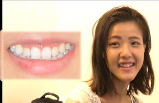オーラルビューティークリニック白金のガミースマイル治療:上唇粘膜切除術(LIP)の症例写真(アフター)
