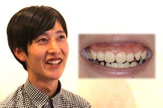 オーラルビューティークリニック白金のガミースマイル治療:歯冠長延長術(CLP)+上唇粘膜切除術(LIP)の症例写真(ビフォー)