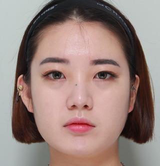 ギャルムハン整形外科のエラ・前顎の症例写真(ビフォー)
