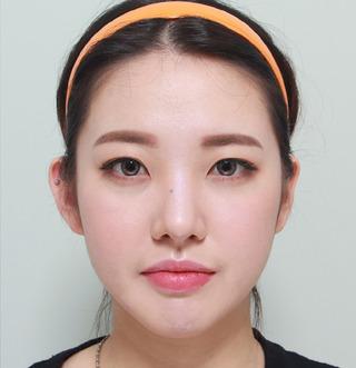 ギャルムハン整形外科のエラ・前顎の症例写真(アフター)