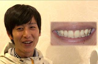 オーラルビューティークリニック白金のガミースマイル治療:歯冠長延長術(CLP)+上唇粘膜切除術(LIP)の症例写真(アフター)