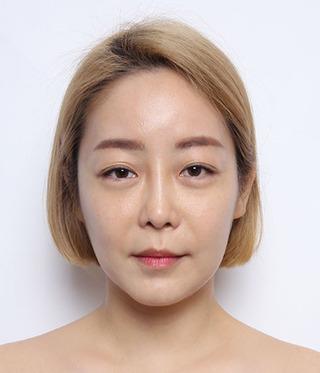 バノバギ整形外科の輪郭3点(頬、前顎、エラ)+目(二重埋没)の症例写真(ビフォー)