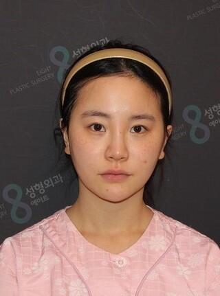 立体美容外科の輪郭手術の症例写真(ビフォー)
