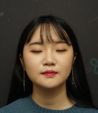 立体美容外科の輪郭手術の症例写真(アフター)