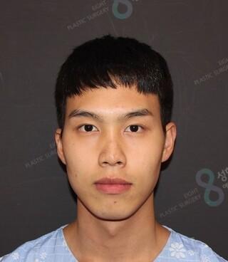 立体美容外科の輪郭手術・鼻整形の症例写真(ビフォー)