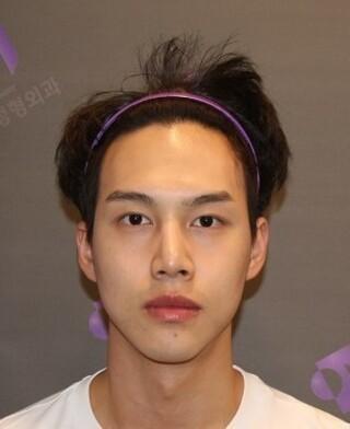 立体美容外科の輪郭手術・鼻整形の症例写真(アフター)