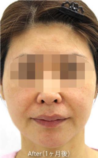 MIYAフェイスクリニックのエラボトックスの症例写真(アフター)