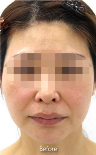 MIYAフェイスクリニックのエラボトックスの症例写真(ビフォー)