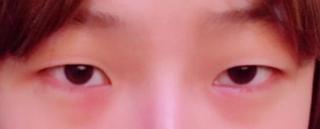 caramel整形外科の目整形(部分切開目つき矯正・目頭切開・目尻切開・タレ目形成)の症例写真(ビフォー)