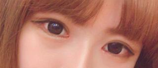 caramel整形外科の目整形(部分切開目つき矯正・目頭切開・目尻切開・タレ目形成)の症例写真(アフター)