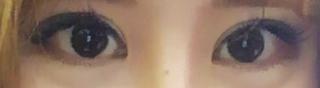 caramel整形外科の目整形(切開目つき矯正・目頭切開・目尻切開・タレ目形成)の症例写真(アフター)