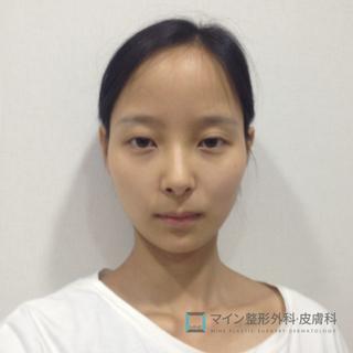 マイン整形外科・皮膚科の非切開目つき矯正術+輪郭3点+糸リフト+額縮小術+豊胸手術の症例写真(ビフォー)