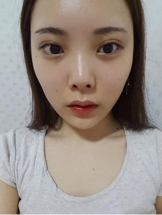 バノバギ整形外科の輪郭3点(頬骨+前顎+エラ)の症例写真(ビフォー)