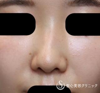 聖心美容クリニック東京院の【30代女性・曲がった鼻筋がまっすぐ綺麗に】Gメッシュ(10日後)の症例写真(ビフォー)