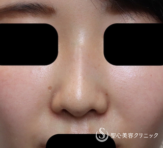 聖心美容クリニック東京院の【30代女性・曲がった鼻筋がまっすぐ綺麗に】Gメッシュ(10日後)の症例写真(アフター)