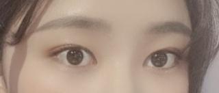 ハイボム整形外科の目整形(再手術)の症例写真(アフター)