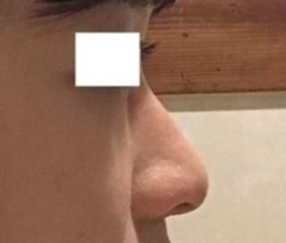ハイボム整形外科の鼻先整形の症例写真(ビフォー)
