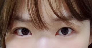 ハイボム整形外科の目整形の症例写真(ビフォー)