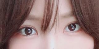 ハイボム整形外科の目整形の症例写真(アフター)