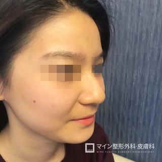 マイン整形外科・皮膚科の鷲鼻矯正+骨切幅寄せ+矢印鼻矯正+マインブリミンリフトアップの症例写真(ビフォー)