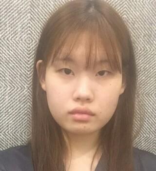 ミナ美容外科の目整形+鼻整形の症例写真(ビフォー)