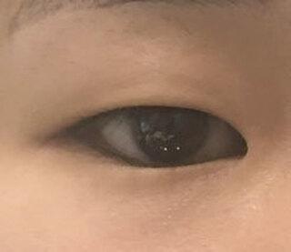 ミナ美容外科の目整形の症例写真(ビフォー)