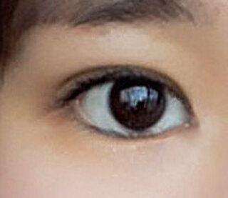 ミナ美容外科の目整形の症例写真(アフター)