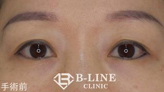 B-LINE CLINICの眉下リフト術 2ヵ月後の症例写真(ビフォー)