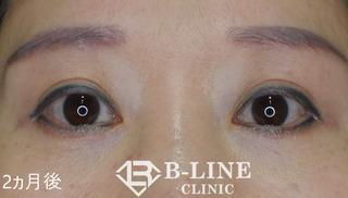 B-LINE CLINICの眉下リフト術 2ヵ月後の症例写真(アフター)