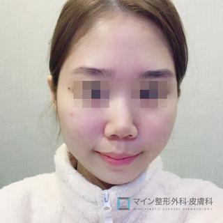 マイン整形外科・皮膚科の鼻柱+鼻先、鷲鼻矯正、鼻中隔固定術、耳軟骨移植/顎先ヒアルロン酸の症例写真(ビフォー)