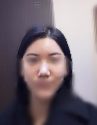 加美(GAMI)整形外科の鼻の手術の症例写真(ビフォー)