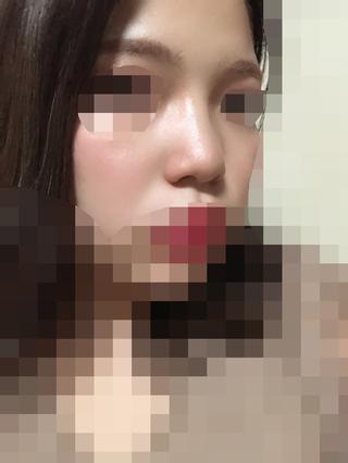 加美(GAMI)整形外科の鼻の矯正の症例写真(ビフォー)