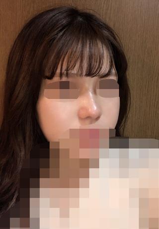 加美(GAMI)整形外科の鼻の矯正の症例写真(アフター)