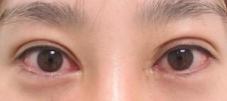 銀座TAクリニックのグラマラスライン(切開法)+目尻靭帯移動術の症例写真(ビフォー)