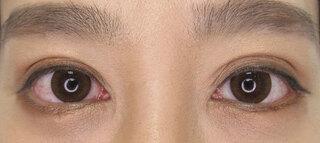 銀座TAクリニックのグラマラスライン(切開法)+目尻靭帯移動術の症例写真(アフター)