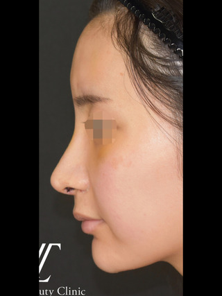 Zetith Beauty Clinicの鼻フルコース、額+こめかみ脂肪注入の症例写真(アフター)