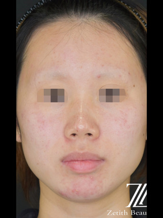 Zetith Beauty Clinicの鼻フルコースの症例写真(ビフォー)