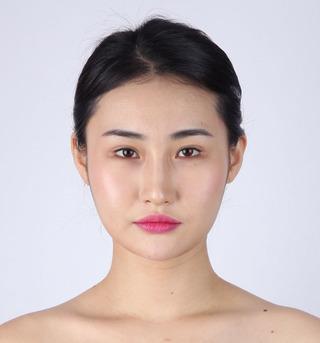 バノバギ整形外科の輪郭3点、目つき矯正、目下形成の症例写真(ビフォー)