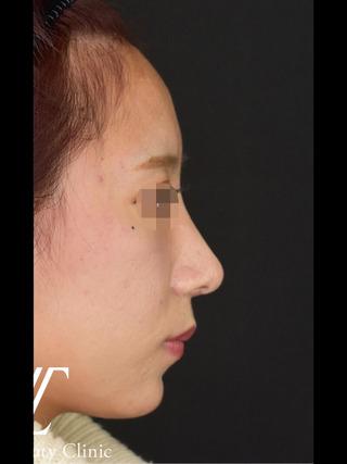 Zetith Beauty Clinicの鼻フルコースの症例写真(アフター)