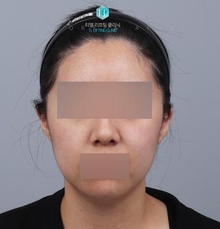 TL美容クリニック リフティング・皮膚管理センターのパワーVリフティング / バッカルファット除去 / 糸リフトの症例写真(ビフォー)