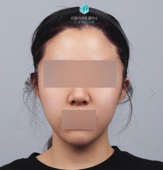 TL美容クリニック リフティング・皮膚管理センターのパワーVリフティング / バッカルファット除去 / 糸リフトの症例写真(アフター)