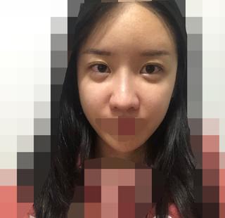 加美(GAMI)整形外科の目と鼻の手術の症例写真(ビフォー)