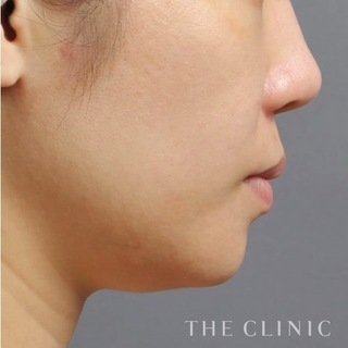 THE CLINIC(ザ・クリニック)東京院の顔(頬・顎)のベイザー脂肪吸引の症例写真(ビフォー)