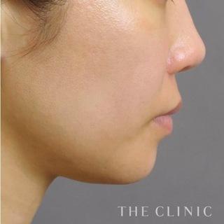 THE CLINIC(ザ・クリニック)東京院の顔(頬・顎)のベイザー脂肪吸引の症例写真(アフター)