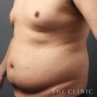 THE CLINIC(ザ・クリニック)大阪院のお腹のベイザー脂肪吸引の症例写真(ビフォー)
