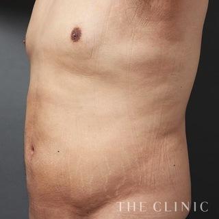 THE CLINIC(ザ・クリニック)大阪院のお腹のベイザー脂肪吸引の症例写真(アフター)