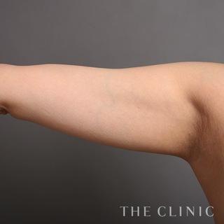 THE CLINIC(ザ・クリニック)福岡院の二の腕のベイザー脂肪吸引の症例写真(ビフォー)